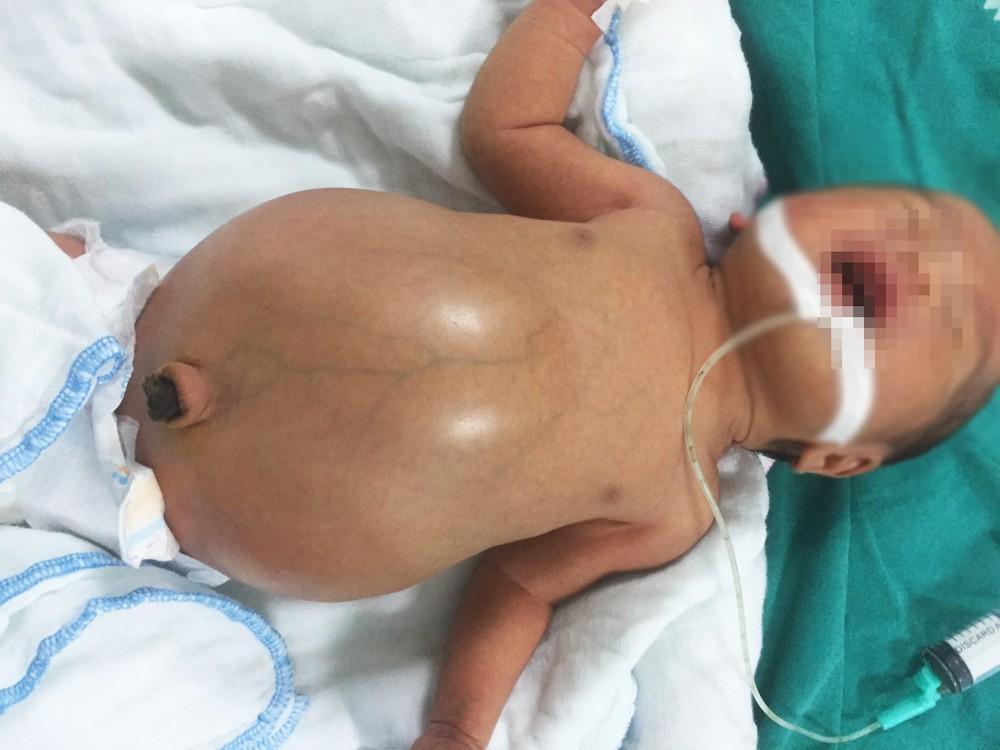 Cứu sống bé trai 2 ngày tuổi bị tắc ruột bẩm sinh ảnh 1