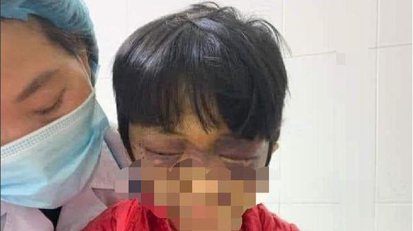 Bé gái 6 tuổi bị mẹ đẻ đang mang thai bạo hành dã man