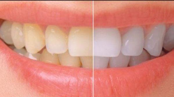 Giúp bạn làm trắng răng tại nhà với 2 công thức đơn giản