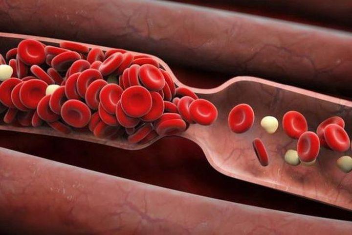 Abelacimab có thể giúp ngăn ngừa cục máu đông sau phẫu thuật - Báo Sức Khỏe & Đời Sống