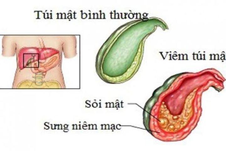Xoa bóp bấm huyệt hỗ trợ trị viêm túi mật - Báo Sức Khỏe & Đời Sống