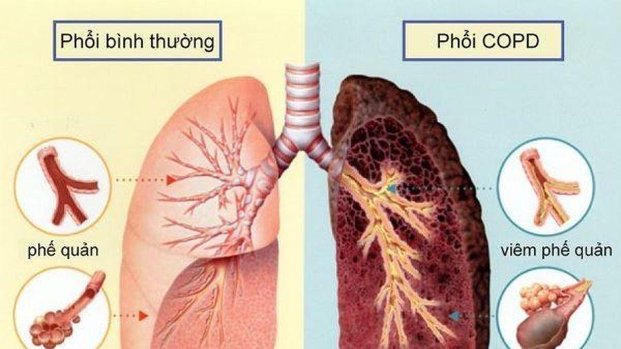 Mỗi năm có 25 nghìn ca tử vong do bệnh tắc nghẽn phổi mãn tính
