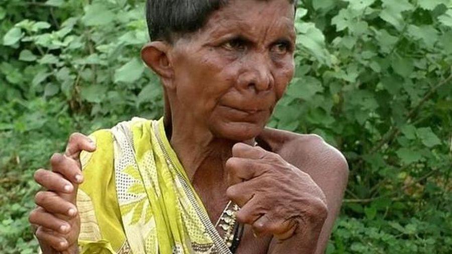 Người phụ nữ có 19 ngón chân, 12 ngón tay bị kỳ thị là 'phù thủy'