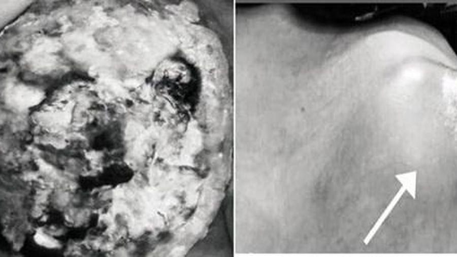 Nữ bệnh nhân hoại tử vú vì ăn thực dưỡng chữa ung thư... theo cách trên MXH