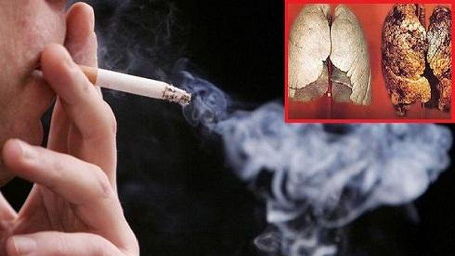 Thuốc lá 'sát thủ dịu dàng' sau làn khói trắng