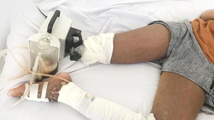 Bé gái 13 tuổi phải cắt bỏ chân vì nhờ thày lang vườn trị rắn cắn