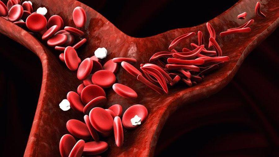Hy vọng mới cho những bệnh nhân mắc bệnh hồng cầu lưỡi liềm