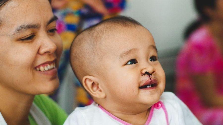 Lịch, địa chỉ đăng ký phẫu thuật miễn phí cho trẻ sứt môi, hở hàm ếch tháng 12/2019