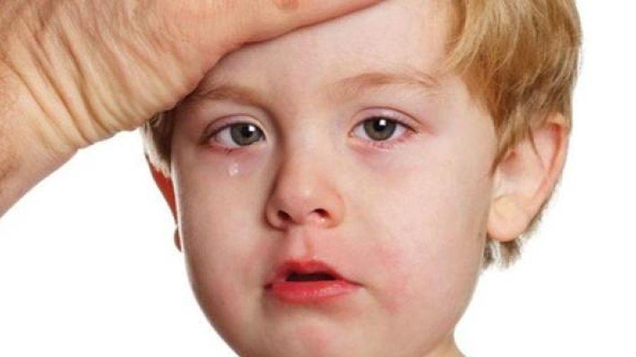 Những dấu hiệu nhận biết bệnh ung thư ở trẻ nhỏ