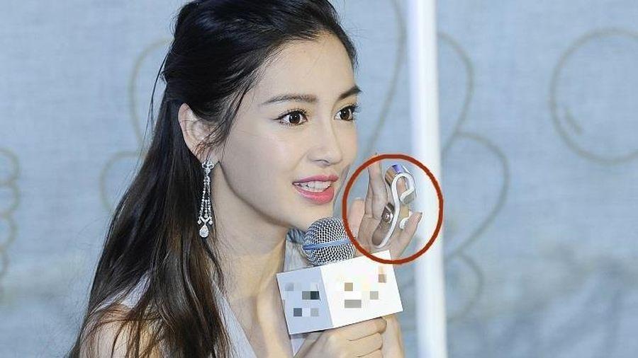 Angelababy phải đeo nẹp ngón tay sau tai nạn quay show