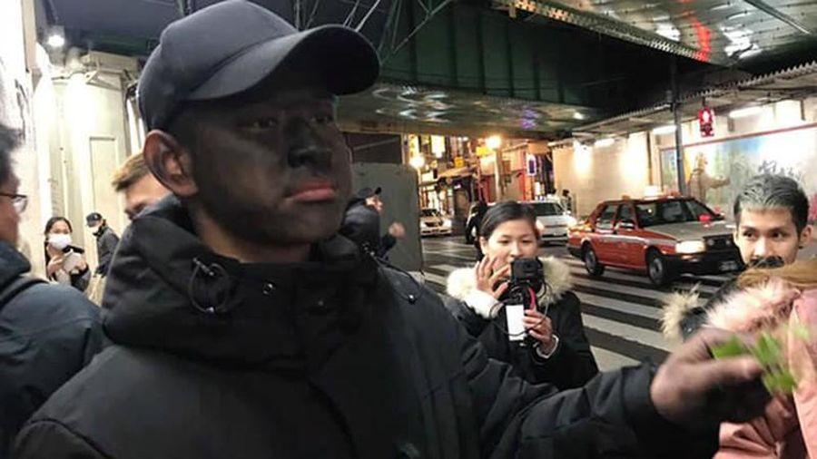 'Ăn mày mặt đen' lan sang Nhật khiến người dân khiếp vía