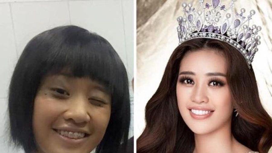 Loạt ảnh chứng minh nhan sắc hoa hậu Khánh Vân lên đời vi diệu nhờ niềng răng