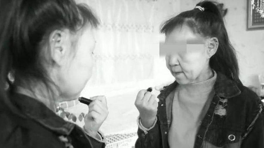 Có gương mặt như bà lão 60, thiếu nữ 15 tuổi bị gọi là 'quái vật'