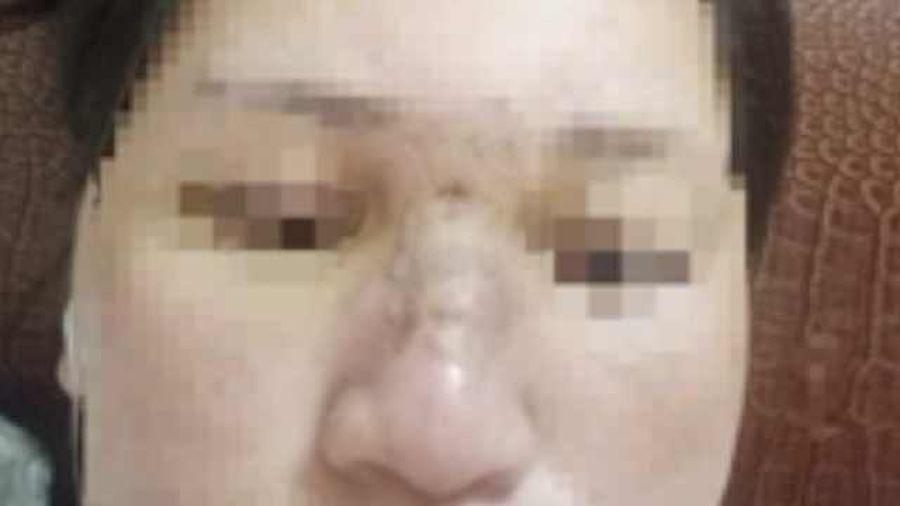 Người phụ nữ bị sưng phù mặt sau khi tiêm filler làm đẹp