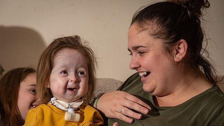 Bé gái 2 tuổi mắc chứng bệnh hiếm gặp, xương bị biến dạng, khuôn mặt lão hóa như cụ già
