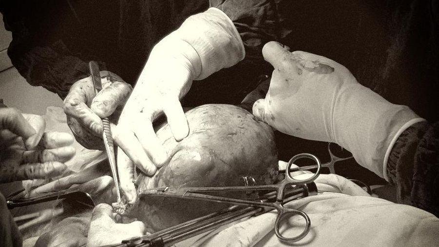Cắt khối u xơ tử cung khổng lồ cho bệnh nhân nữ có tiền sử tim mạch ngoại tâm thu thất khá hiếm gặp