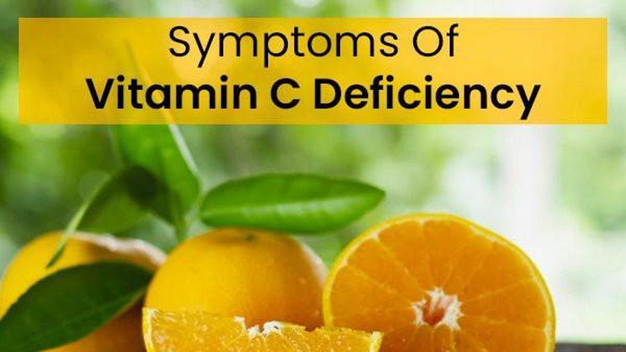 Thiếu vitamin C có thể gây suy giảm miễn dịch