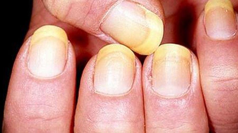 Đặc biệt chú ý nếu móng tay xuất hiện điều này, dấu hiệu cảnh báo cơ thể đang mắc một số bệnh nguy hiểm