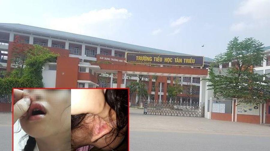 Giáo viên chủ nhiệm lên tiếng phủ nhận việc tát chảy máu, dập môi học sinh lớp 2 vì làm sai bài Toán