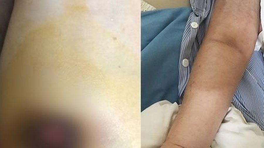 Tự đắp thuốc nam chữa ung thư vú, người phụ nữ nhận kết quả khủng khiếp