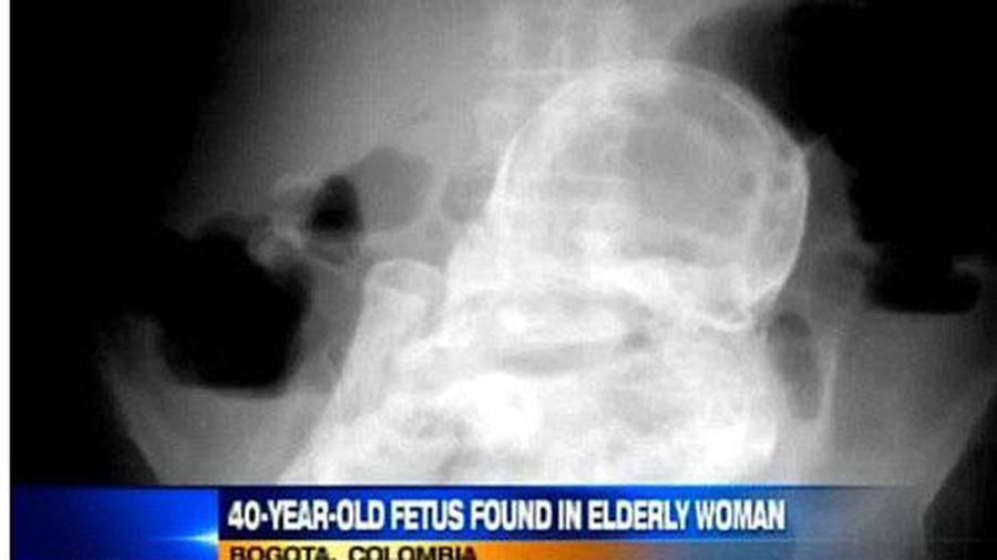 Bác sĩ ngỡ ngàng khi phát hiện thai nhi 44 năm tuổi trong bụng cụ bà 84 tuổi