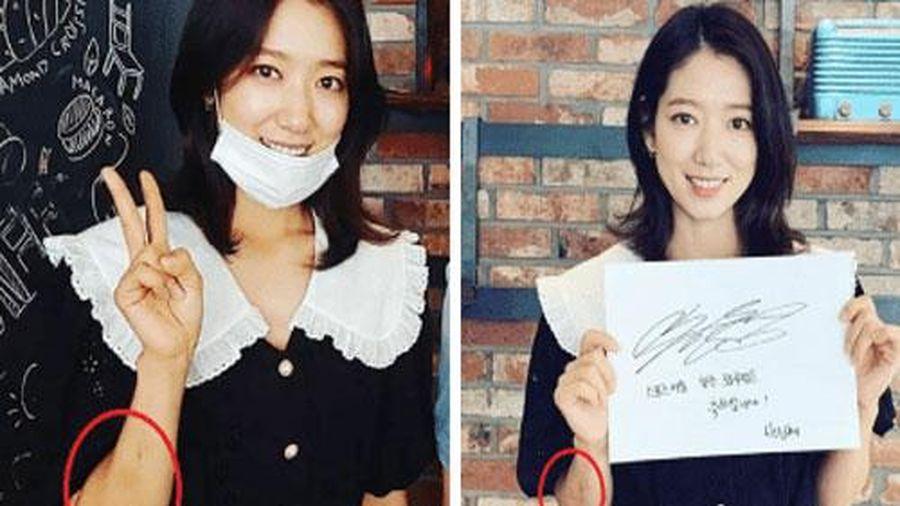 Park Shin Hye gầy đi trông thấy, tay xuất hiện nhiều vết bầm tím