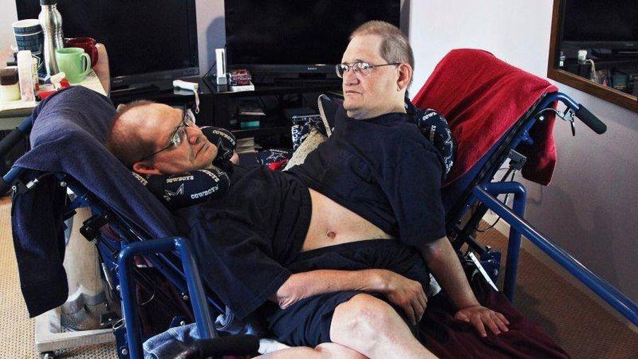 Cặp song sinh dính liền lớn tuổi nhất thế giới qua đời