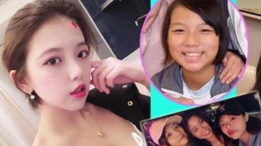 Ứng cử viên sáng giá Hoa hậu Hong Kong bị tố dao kéo, thích ăn chơi
