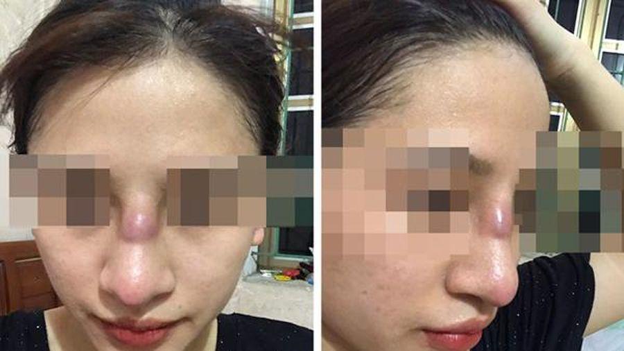 Thiếu nữ Quảng Ninh suýt thủng mũi sau làm đẹp ở spa