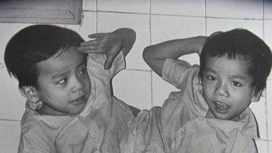 Những ca song sinh tách rời thành công tại Việt Nam