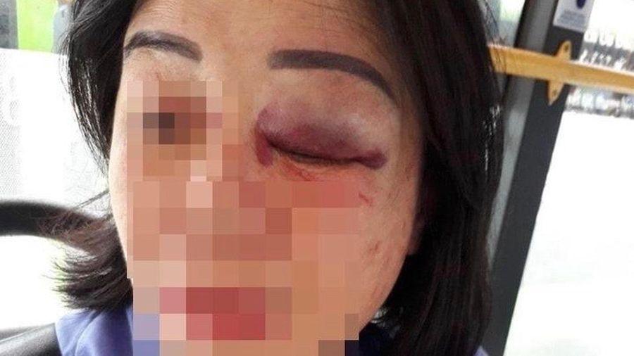 Nhân viên xe buýt ở TP.HCM bị đánh bầm mắt vì nhắc khách vặn nhỏ nhạc