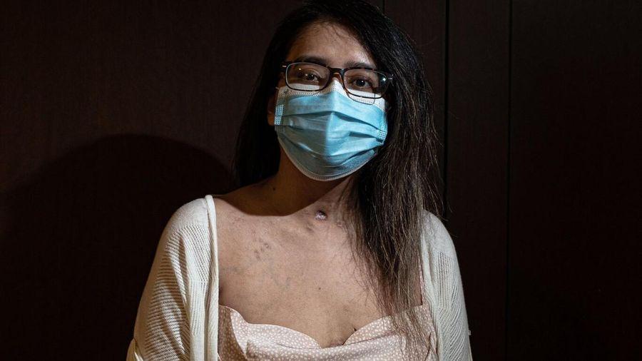 Trải lòng của bệnh nhân Covid-19 đầu tiên được ghép phổi tại Mỹ sau khi trở về từ cõi chết