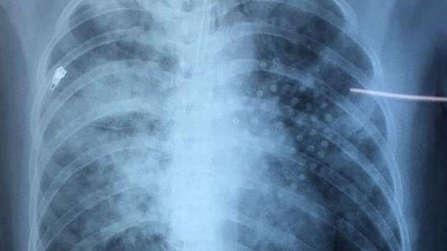 Hy hữu cứu 1 phụ nữ động kinh té xuống ao khiến bùn lấp đầy phổi