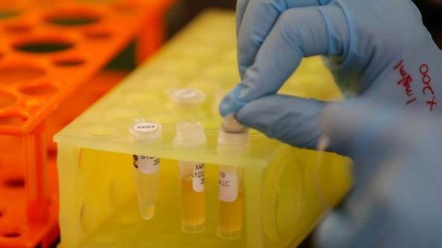 Chưa tìm được vắc-xin, kháng thể đơn dòng có thể là chìa khóa đánh bại COVID-19
