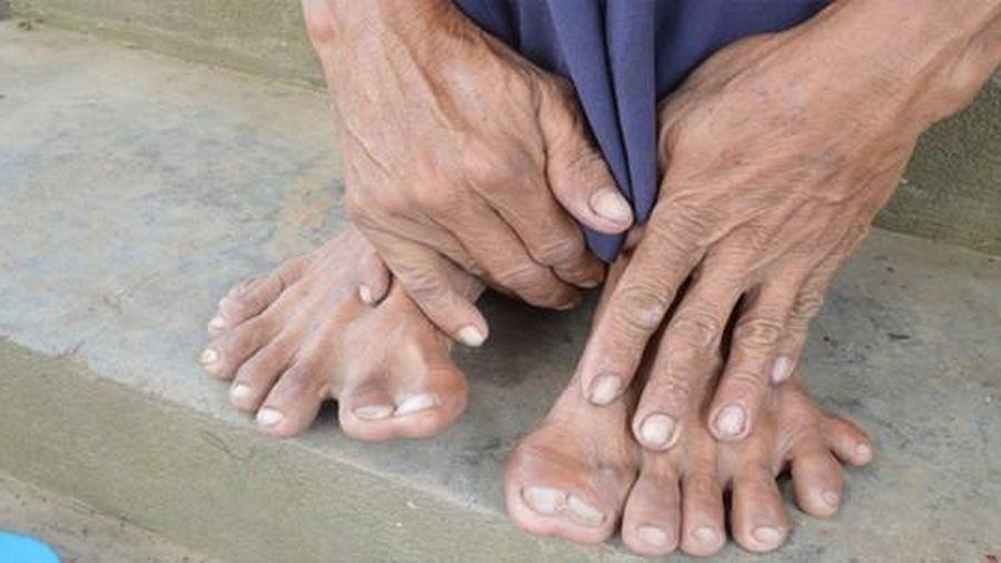 Tận thấy người đàn ông có 25 ngón tay, chân ở Đồng Tháp