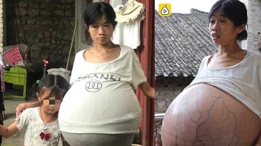 Người phụ nữ gây sốc vì bụng phình khổng lồ suốt 2 năm không rõ nguyên nhân