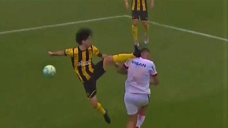 Cầu thủ nhận thẻ đỏ vì đạp vào mặt đối phương