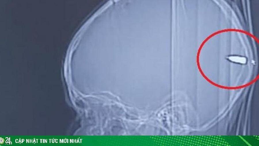 Thấy con hay buồn ngủ bố mẹ đưa đi chụp CT và phát hiện sốc