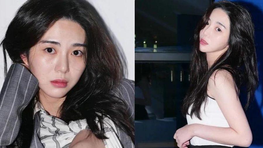 Cựu thành viên AOA Kwon Mina xuất viện, chưa có kế hoạch hoạt động trong thời gian sắp tới