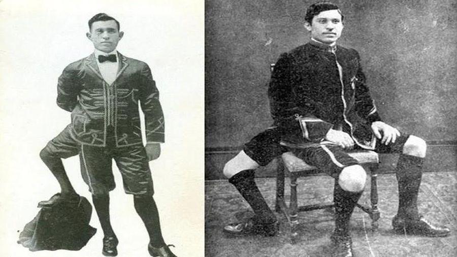 Sự thật ngỡ ngàng 'dị nhân' 3 chân nổi tiếng nhất lịch sử