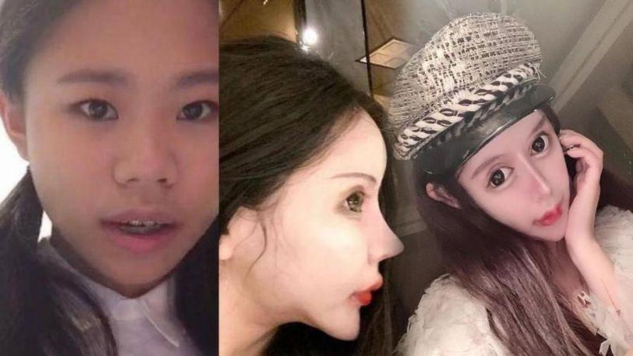 Sợ hãi với 'gương mặt rắn' của mẫu nữ 16 tuổi, đã phẫu thuật thẩm mĩ đến 70 lần