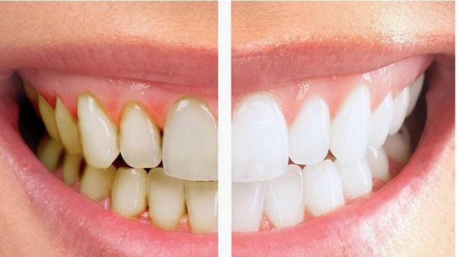 Điều gì xảy ra khi ngừng đánh răng?