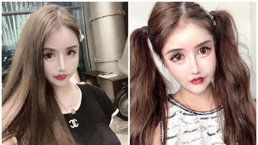 100 lần phẫu thuật thẩm mỹ, hot girl xứ Trung nhìn phát sợ