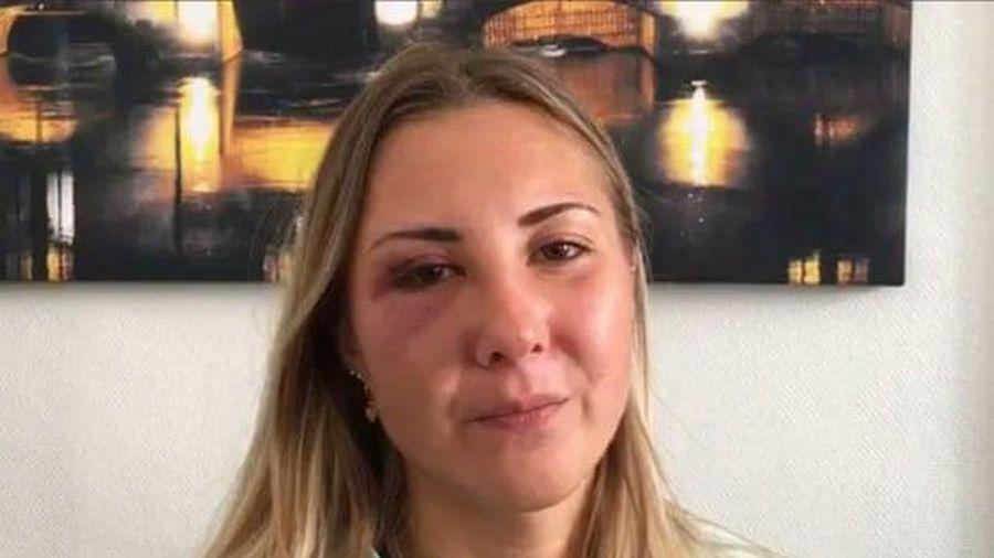 Người phụ nữ bị tấn công vì mặc váy ngắn tại Pháp