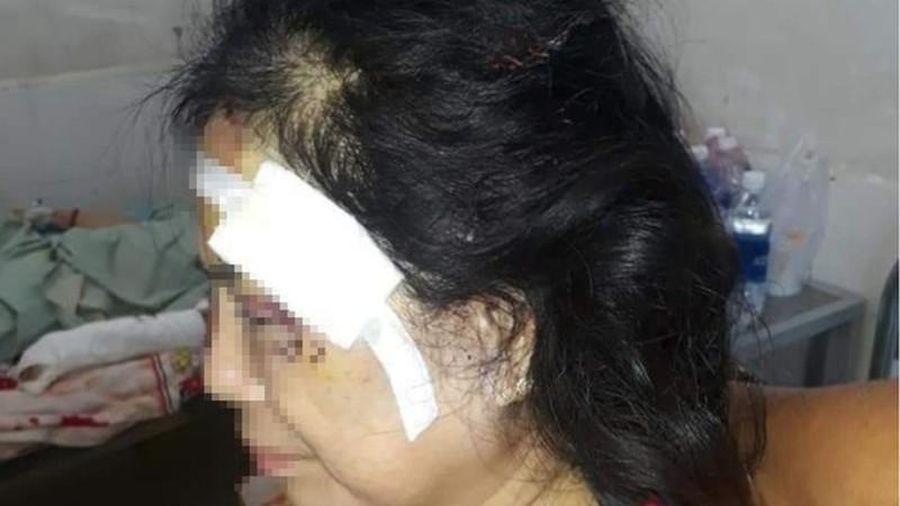 Chồng đánh vợ cũ dã man ở Phú Yên: Vì sao phụ nữ mãi khổ?