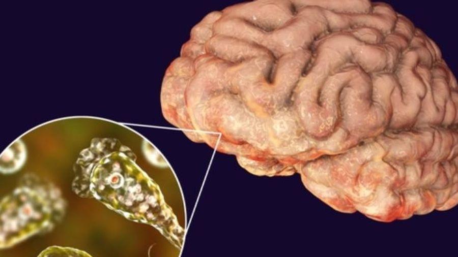 Thảm họa ở Mỹ: Tìm thấy amip ăn não trong nguồn nước tại 8 thành phố