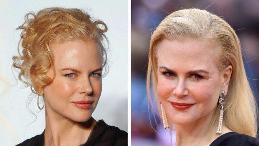 9 vị trí không thể che giấu trên khuôn mặt sẽ tiết lộ tuổi thật của phụ nữ