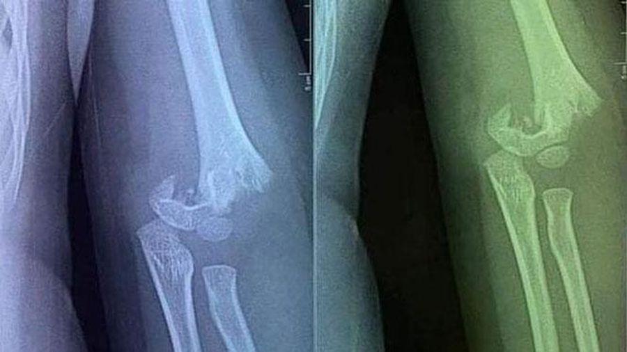 Xác minh việc trẻ bị ngã gãy tay tại trường