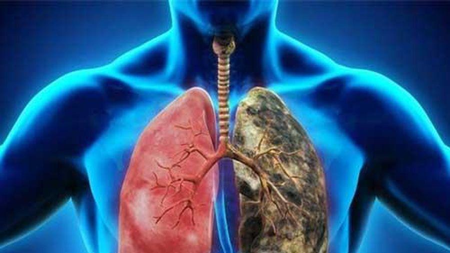 Những thực phẩm là 'sát thủ' hại phổi không kém gì khói độc