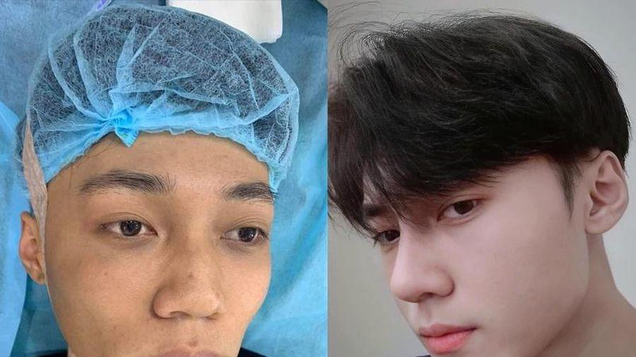 Chàng trai 19 tuổi chi 70 triệu đồng phẫu thuật thẩm mỹ